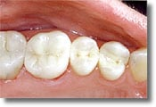 A mercury-free dentist places only tooth-colored composite fillings like the ones shown here on three posterior teeth.