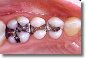 A mercury-free dentist doesn't place metal fillings like the restorations shown here on three posterior teeth.