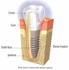 Diagram depicting the main elements of dental implants and how they fuse with the bone in the jaw.