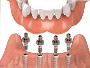 Illustration depicting implant overdentures with four implants.