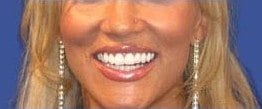 A woman's teeth look bigger and rounder after getting Lumineers placed.