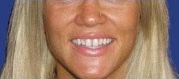 A woman's teeth before getting Lumineers