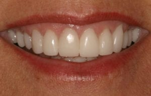 After photo showing teeth after receiving all porcelain crowns.