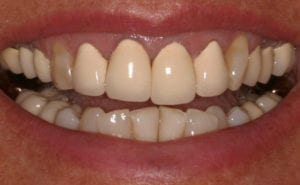 A before photo of teeth with porcelain-fused-to-metal crowns before getting all porcelain crowns.