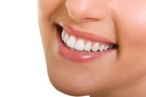 A smiling woman depicting how beautiful teeth can look after full-mouth restoration.