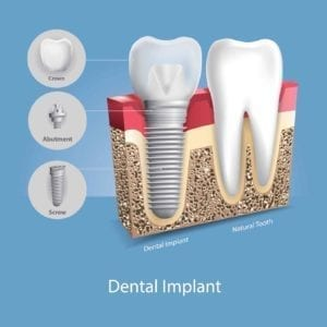 illustration of a dental implant next to a tooth