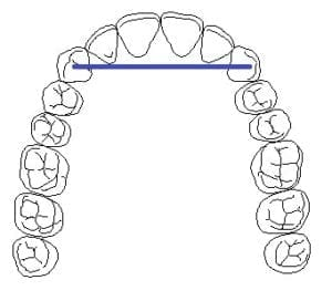 cantilever bridge diagram